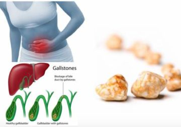 Juices You Can Prepare to Naturally Remove Gallstones